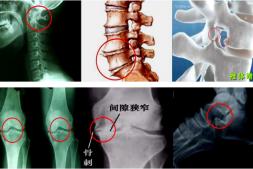 骨质增生的病理知识及注意事项