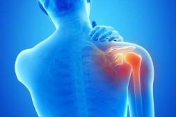 造成肩周炎的原因是什么?症状有哪些?如何预防?