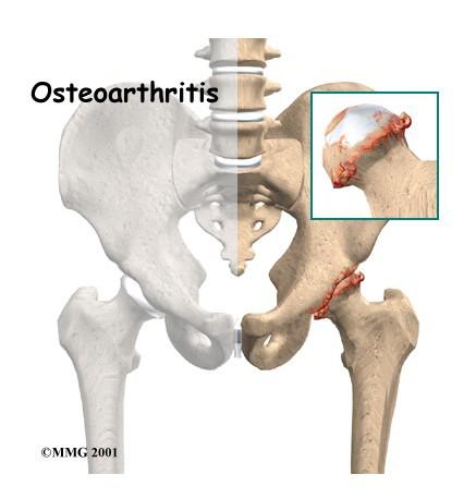 股骨头坏死是什么原因造成的及注意事项