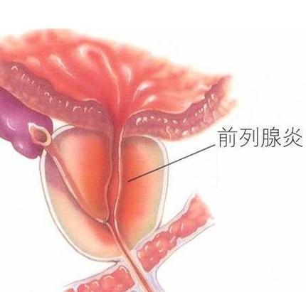 【病理知识】前列腺炎