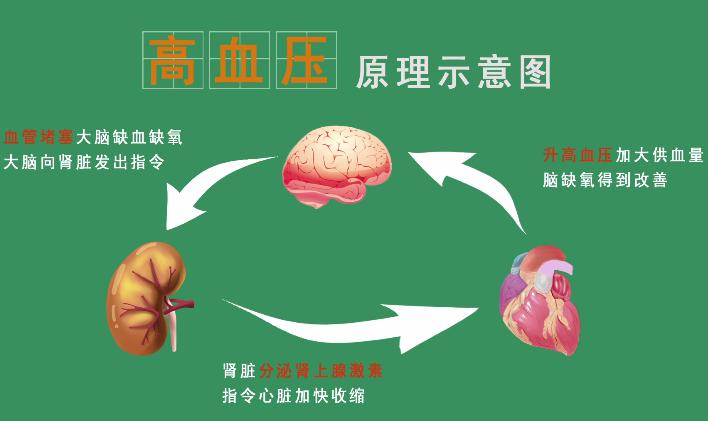 【病理知识】高血压是怎么形成的?如何预防和治疗?